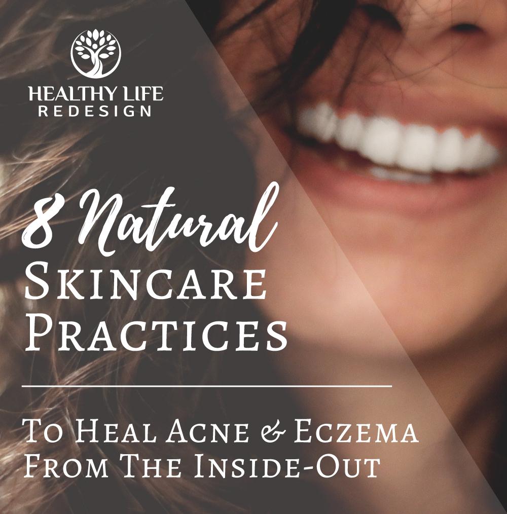 8 Natural Skin Care Practices to Heal Acne and Eczema